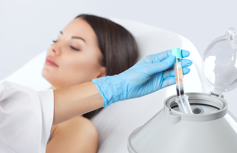 PRP for natural face rejuvenation in Notting Hill, Harley Street, Chelsea and Kensington (London, United Kingdom).